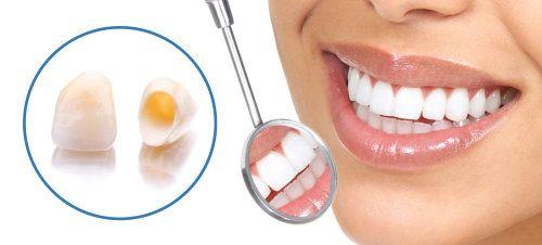 tand kroner